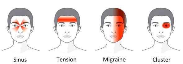 info graphic showing where sinus, tension, migraine and cluster headaches occur