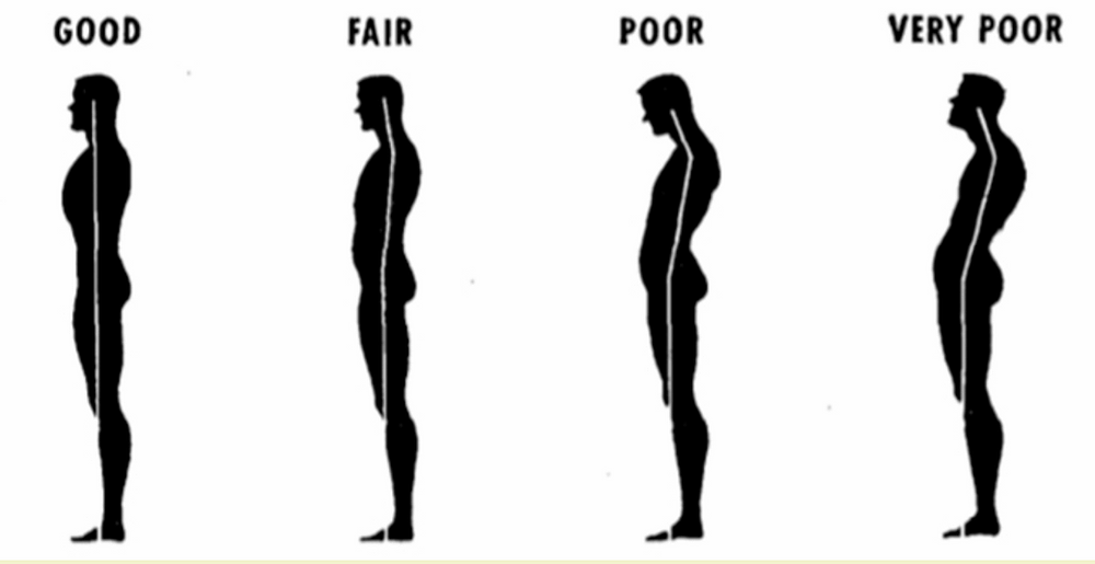 infographic showing what good and bad posture looks like