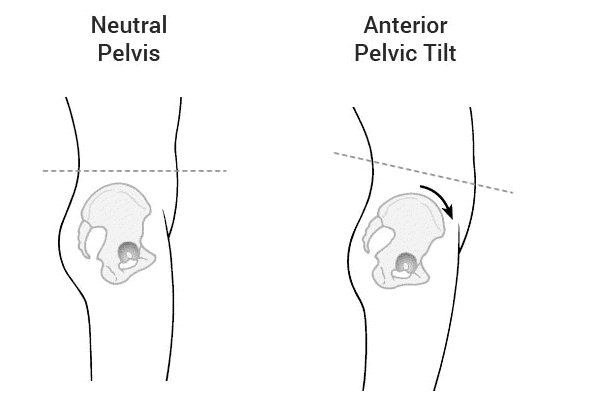 infographic of anterior pelvic tilt