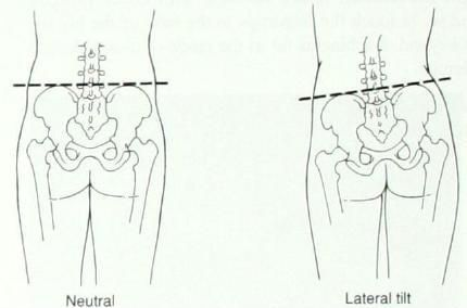 infographic showing a lateral pelvic tilt